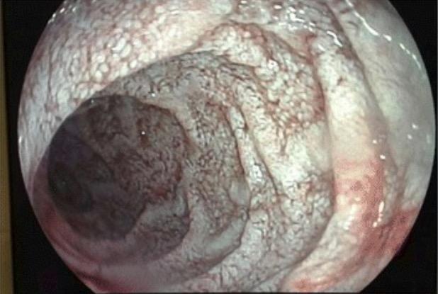 Lymphangiectasia on endoscopy