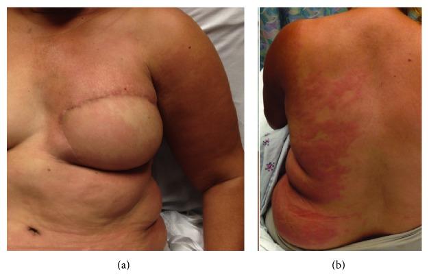 Lymphedema cellulitis