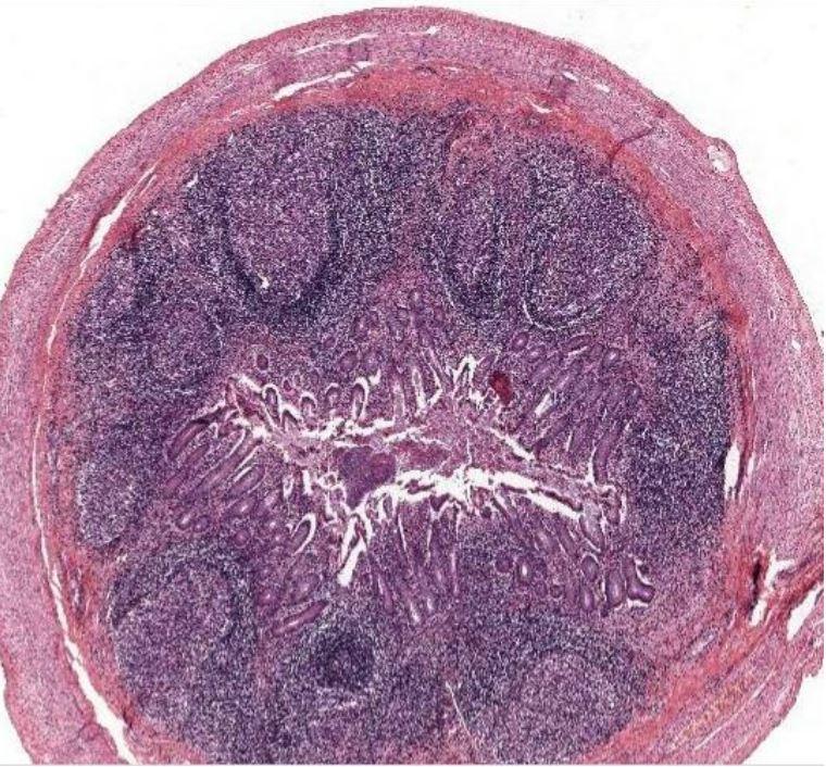 Lymphoid nodules reacting to an antigen from the lumen