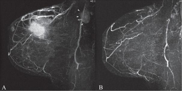 MIP DCE-MRI images