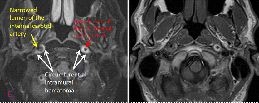 MRA of bilateral internal carotid dissection
