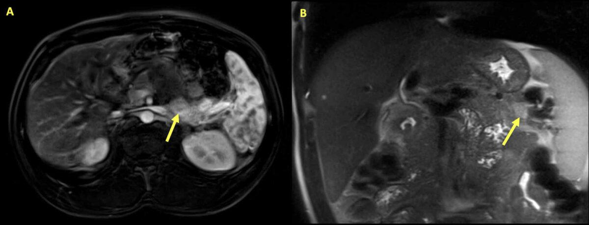 MRI Insulinoma
