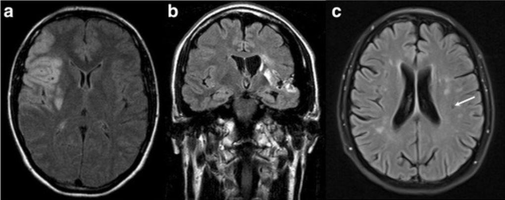 MRI cerebrovascular events
