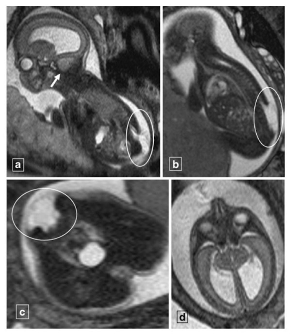 MRI findings fetal Chiari II malformation