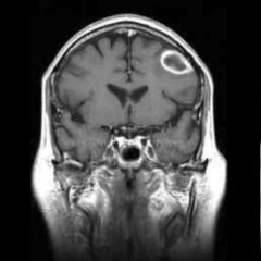 """MRI of a brain abscess showing the classic """"ring enhanced"""" lesion"""