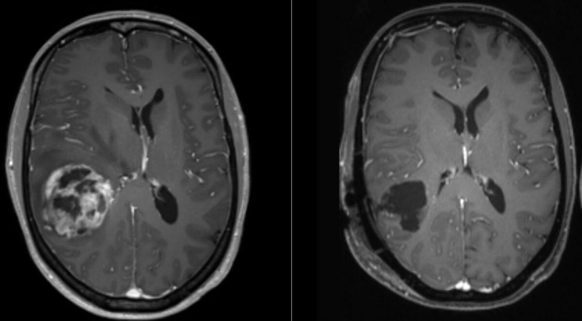 MRI of glioblastoma