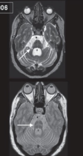 MRI of a brain showing multiple system atrophy (MSA)