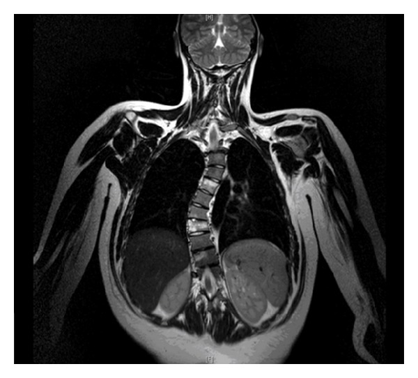 MRI of a patient with recurrent osteomyelitis causing thoracic dextroscoliosis
