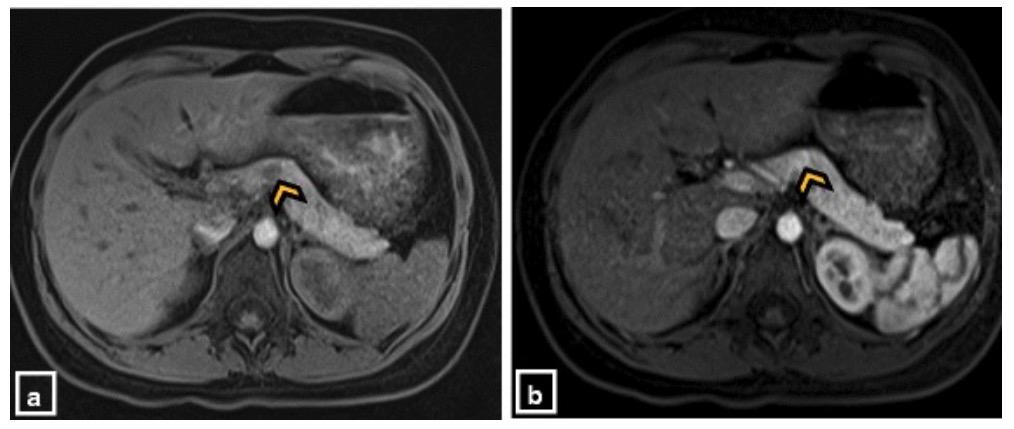 MRI of insulinomas