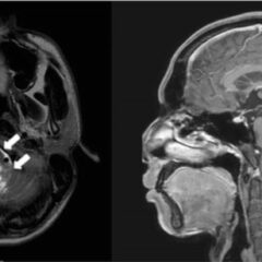 MRI scan reveals an anaplastic ependymoma