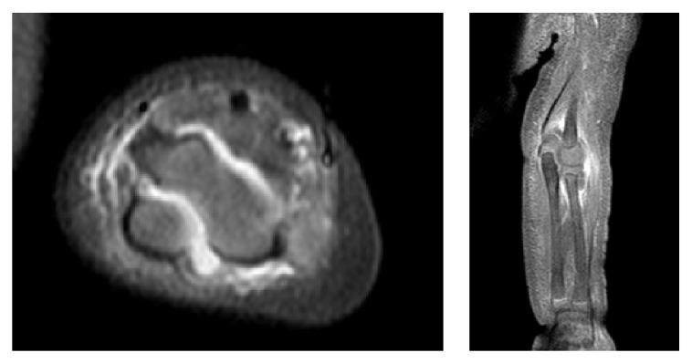 MRI septic arthritis in pediatric patient