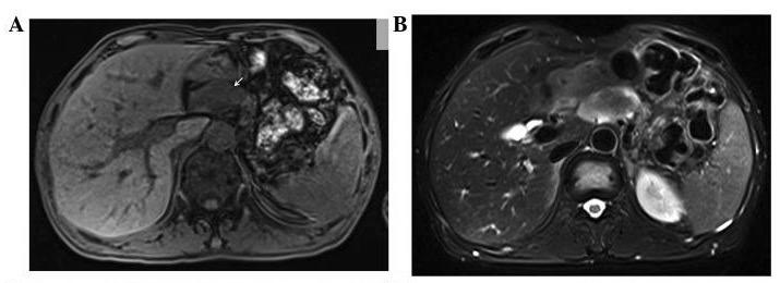 Magnetic resonance imaging manifestations of glucagonoma syndrome