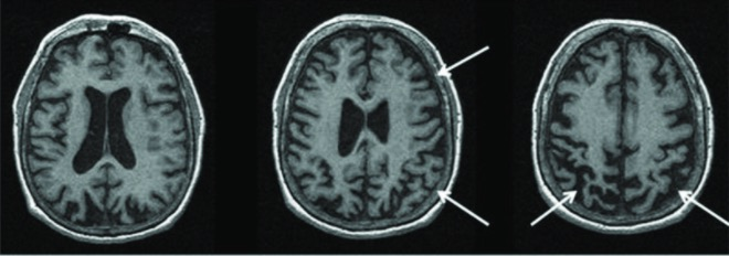 Magnetic resonance imaging of a patient with a pathology-proven diagnosis of corticobasal degeneration