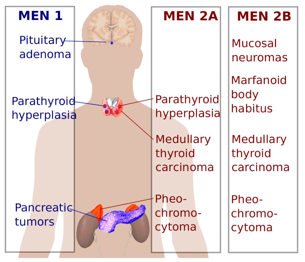 Main types of multiple endocrine neoplasia syndromes