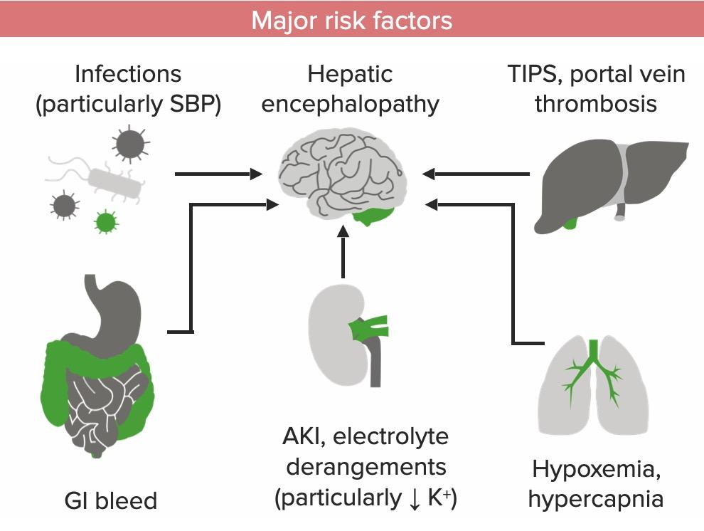 Major risk factors for hepatic encephalopathy