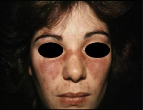 Malar rash due to SLE