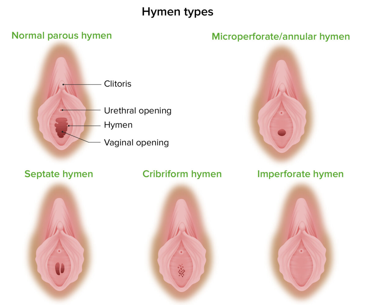 Malformations of hymen