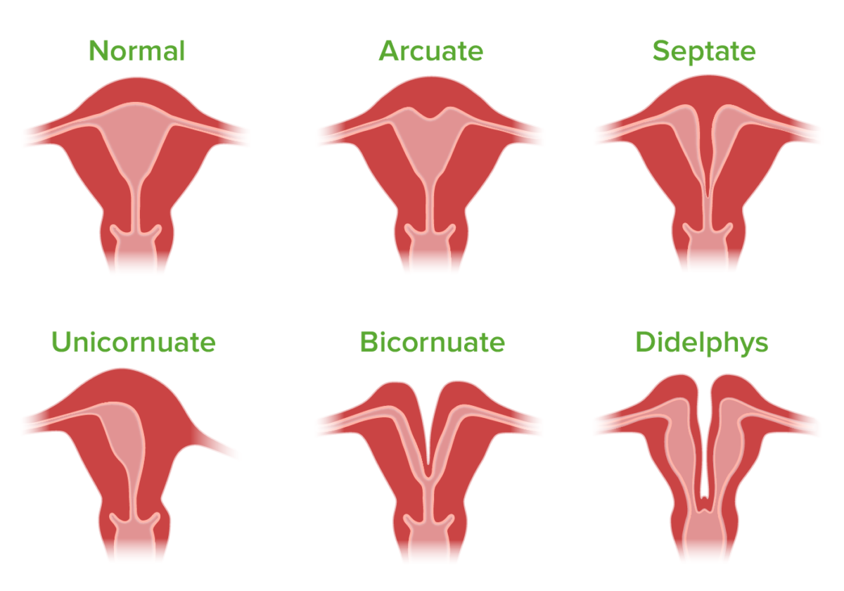 Malformations of the uterus