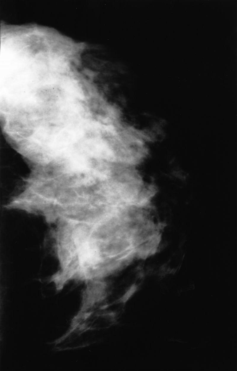 Mammogram showing fibrocystic disease
