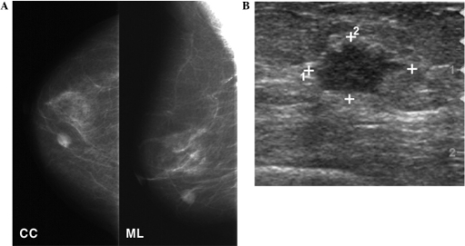 Mammography and breast ultrasound