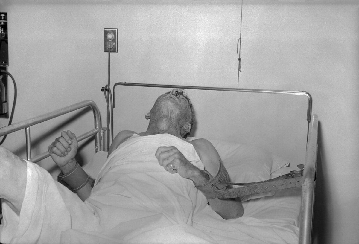 Man with Rabies virus