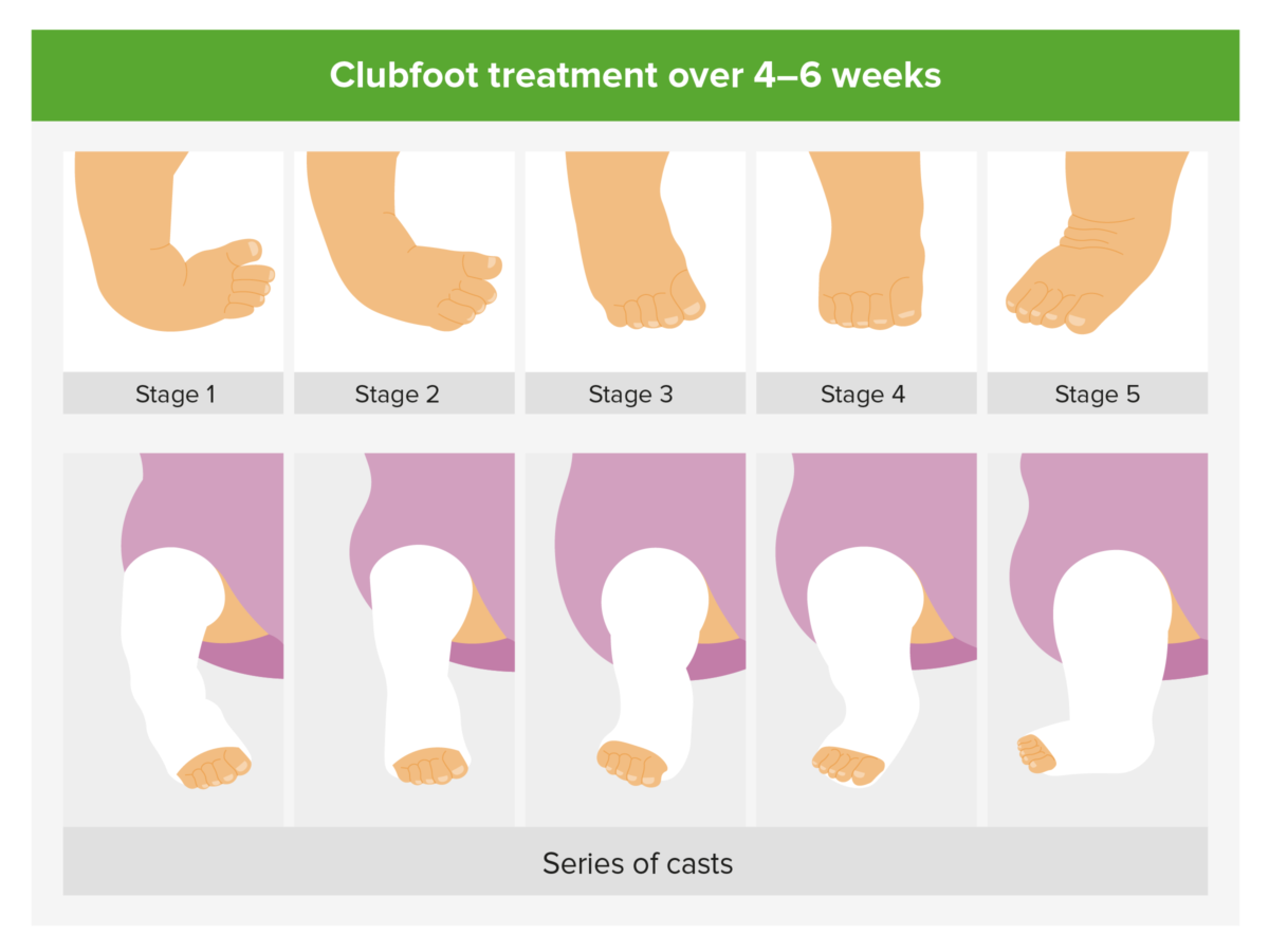 Management of clubfoot