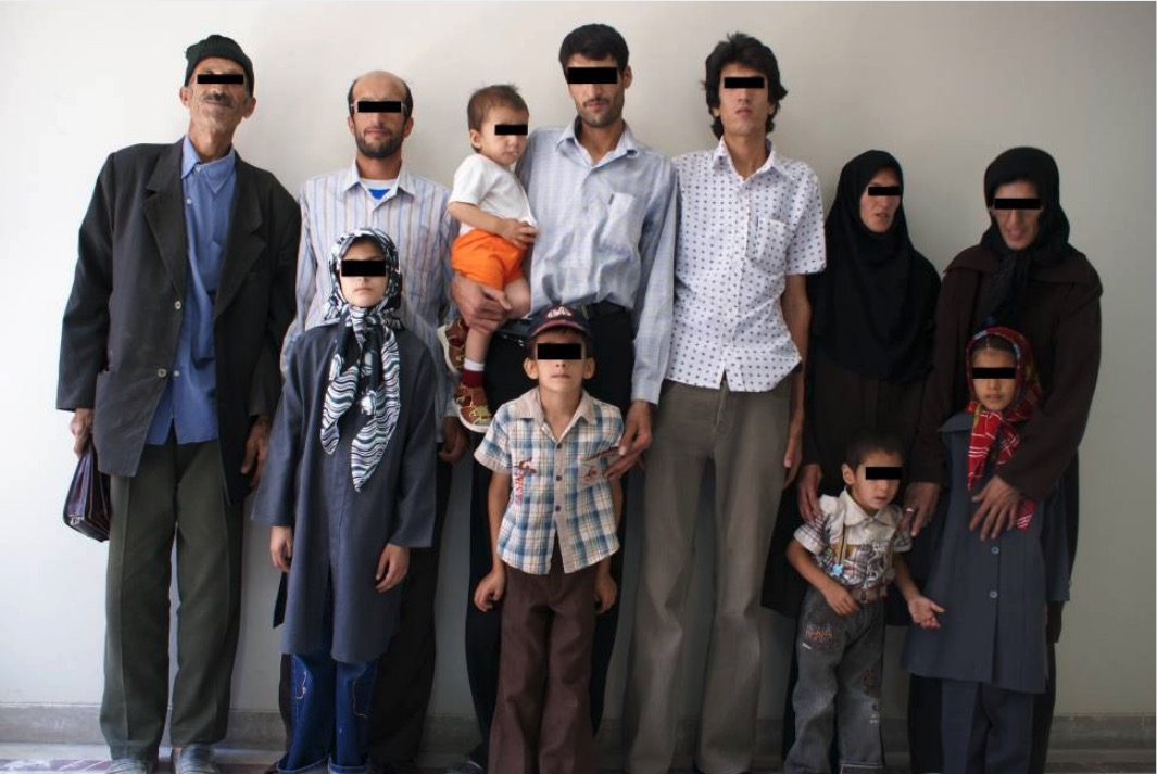 Marfan syndrome in Iranian family