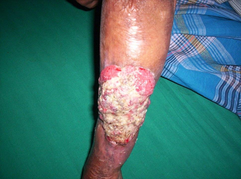 Marjolin's ulcer