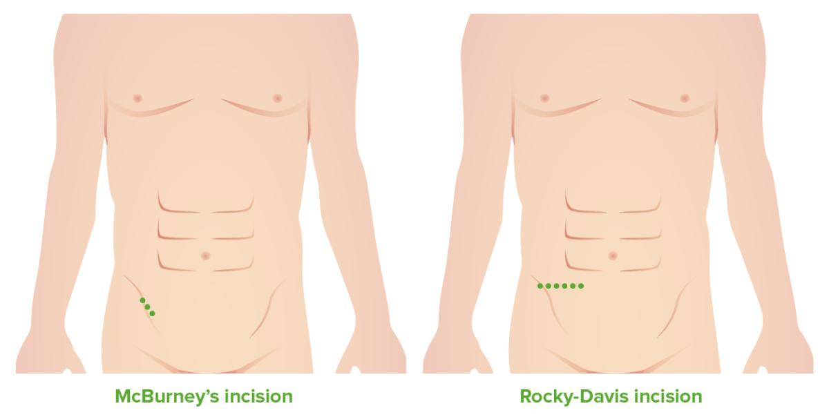 McBurney's and Rocky-Davis incision