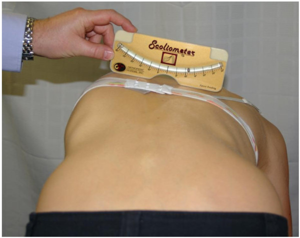 Measurement of the rib hump of a scoliosis patient