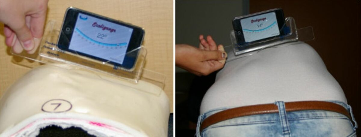 Measurement of the rib hump on a plaster model and a scoliosis patient