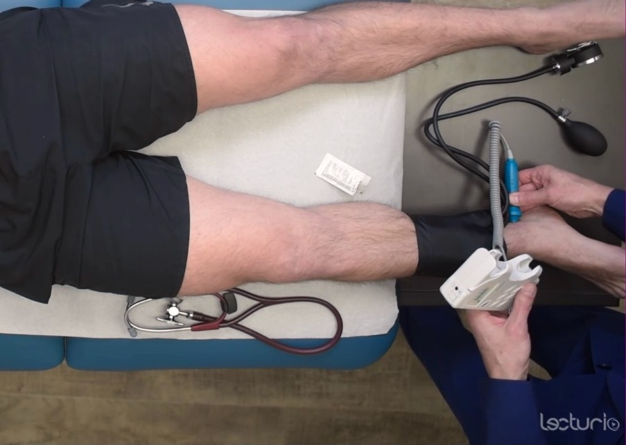 Measuring the systolic pressure at the ankle to calculate the ankle brachial index