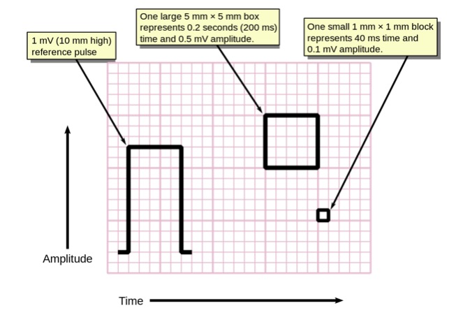 Measuring time and voltage with ECG graph paper