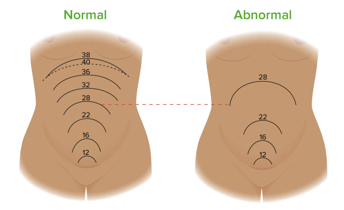 Measurment of fundal height