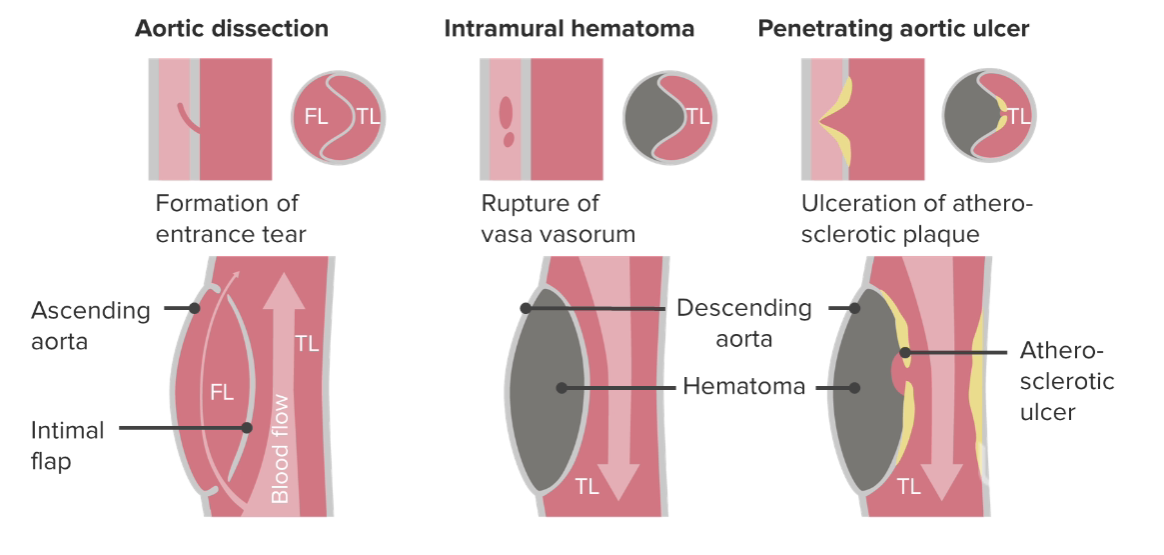 Mechanisms of aortic dissections