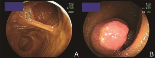 Meckel's diverticulum observed by double-balloon enteroscopy
