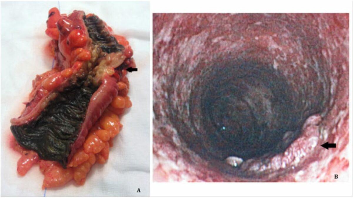 Melanosis coli associated with stimulant laxative use