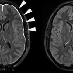 Meningeal irritation evident on contrast-enhanced MRI