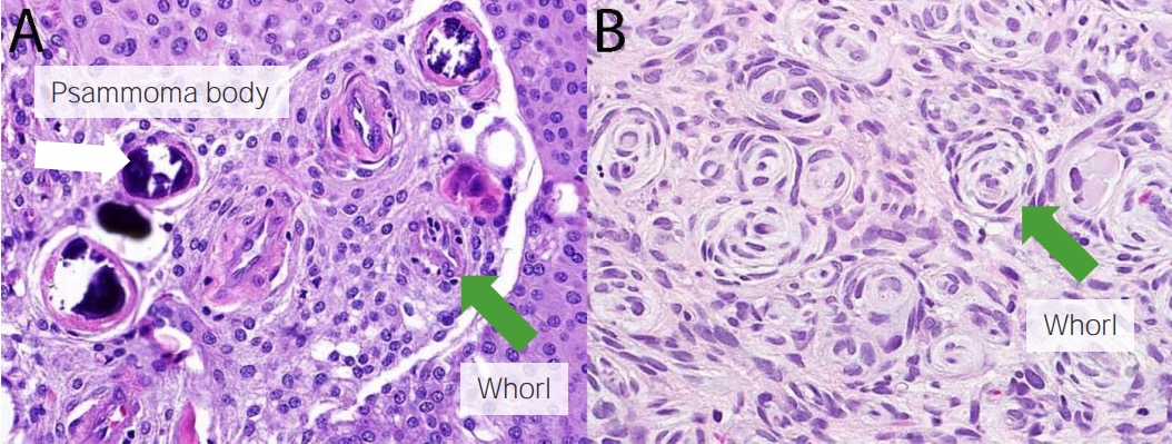 Meningioma histology