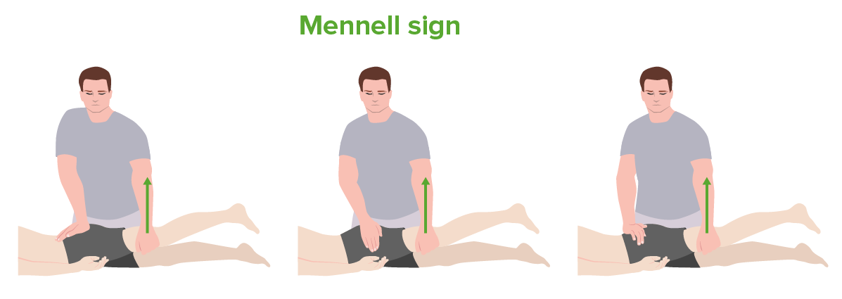 Mennell sign