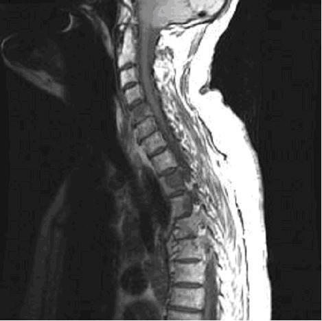 Metastatic disease (affecting the spine) on MRI