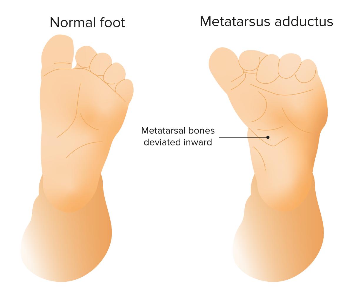 Metatarsus adductus
