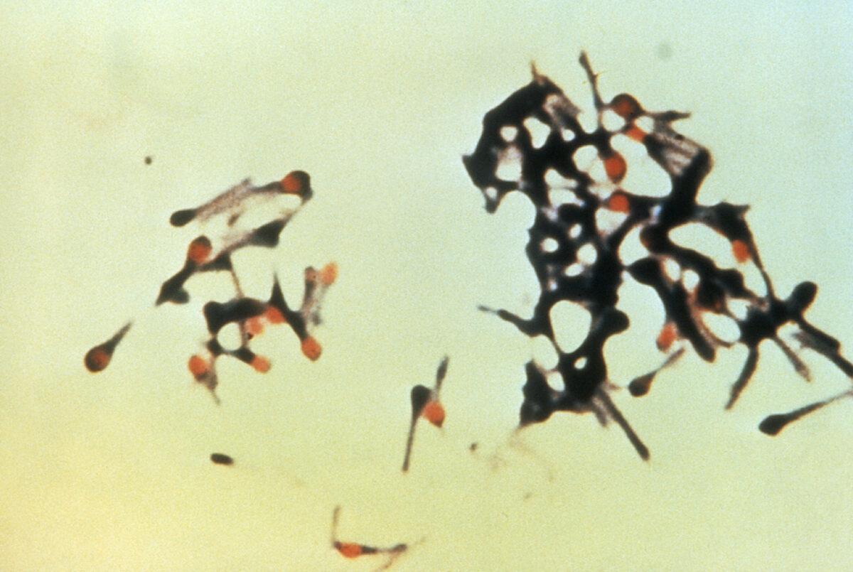 Micrograph of group of Clostridium tetani bacteria