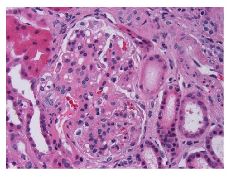 Micrograph of IgA nephropathy
