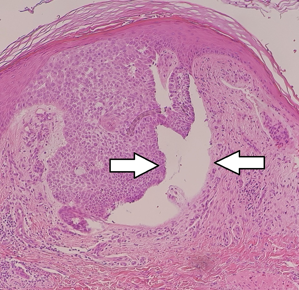 Micrograph of a nodular basal cell cancer