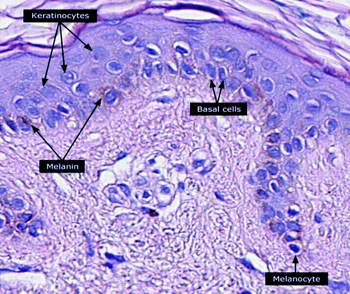 Micrograph of keratinocytes, basal cells and melanocytes in the epidermis