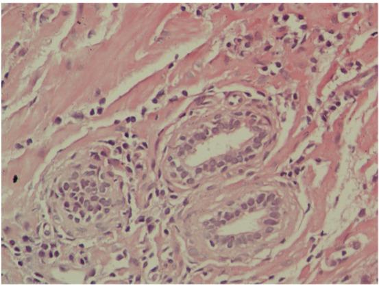Lee leukocyták nőnek a prosztatitis)