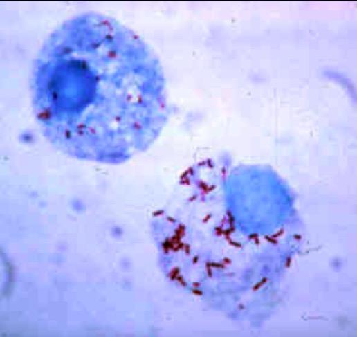 Microscopic image of Rickettsia