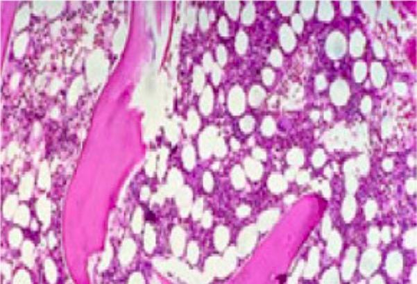 Mild hypoplastic marrow