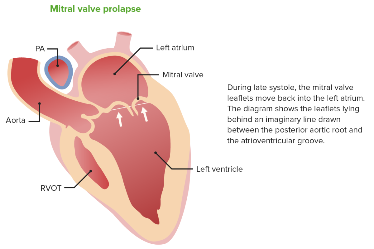 Mitral prolapse heart